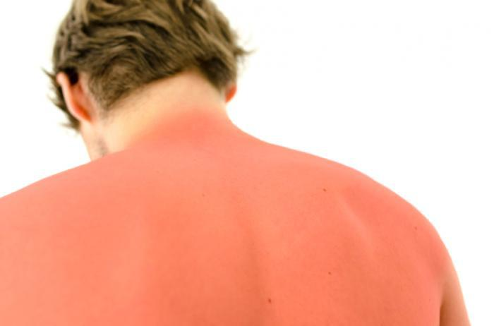 Sunburns And Protecting Your Skin
